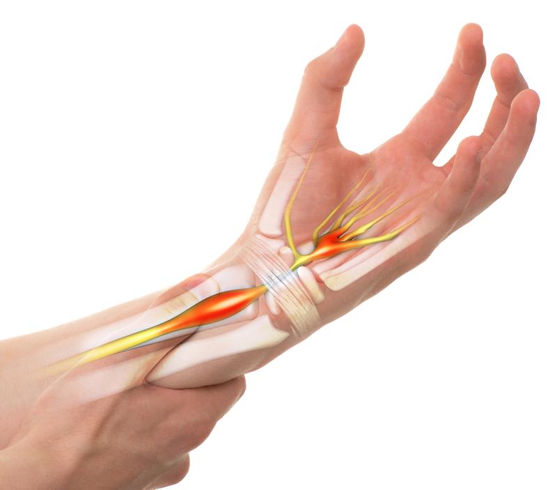 Vẫn tê cổ tay và khó co lắc sau phẫu thuật hội chứng ống cổ tay 2,5 tháng có sao không?