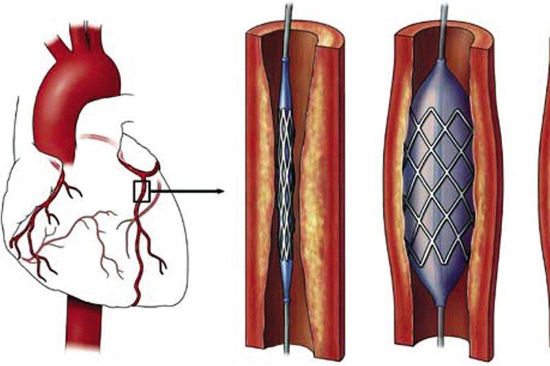 Tai biến tắc nghẽn não phải và mạch máu tim và suy thận có nên đặt stent động mạch vành không?