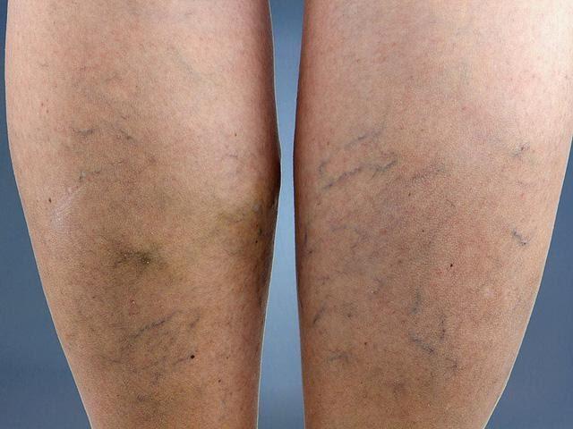Nổi gân xanh dưới da và tê chân khi đứng lâu có phải giãn tĩnh mạch chân không?