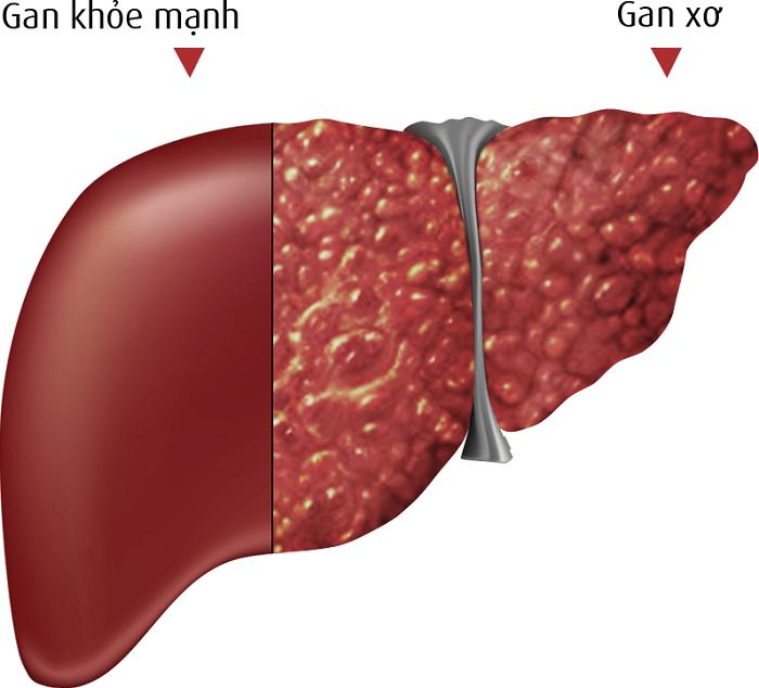 Xơ gan lách to giai đoạn 2 sống được bao lâu?
