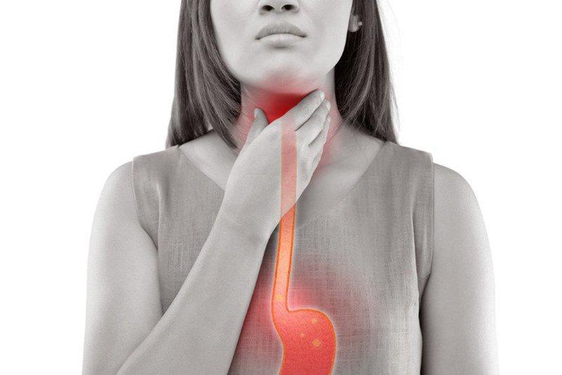 Ợ chua do trào ngược dạ dày, khả năng cơ vòng thực quản bị hở nên điều trị hay phẫu thuật?