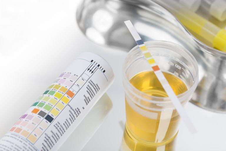 Xét nghiệm nước tiểu có chỉ số protein (0,75 2+ g/l) và hồng cầu (50 3+ Ery/microlit) có nguy hiểm không?