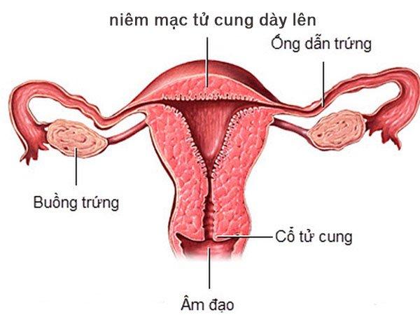 Niêm mạc tử cung dày