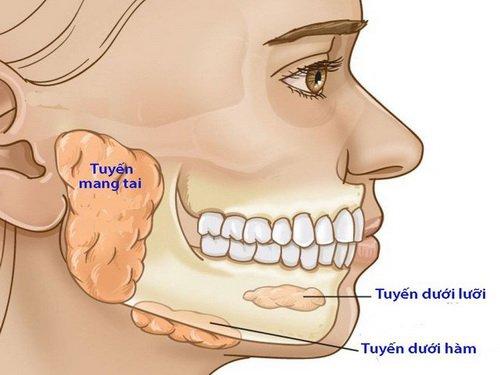 nhiễm trùng khoang dưới hàm
