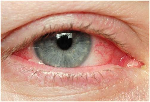 Đau mắt sau đo nhãn áp có chữa dứt điểm được không và có để lại di chứng không?