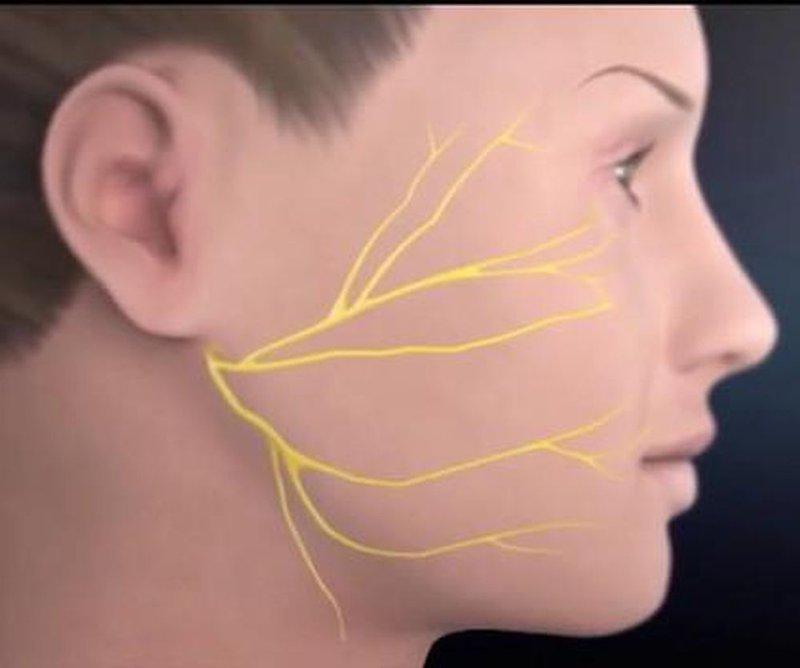 Bị giật, buốt nhói vùng hàm mặt, thái dương bên trái mặt biểu hiện bệnh gì có tự điều trị được không?