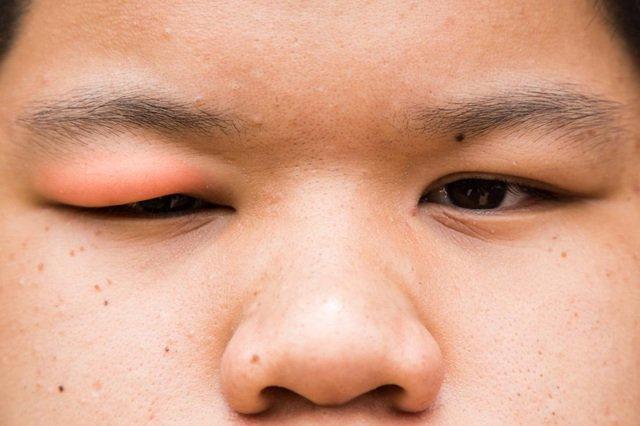 Mắt sưng mí và xót tái lại sau điều trị xước giác mạc có tái phát không và gây suy giảm thị lực không?