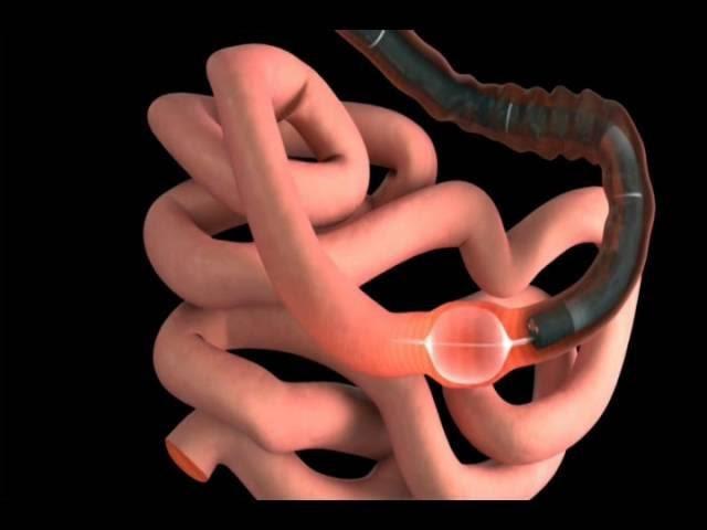 Kỹ thuật nội soi ruột non