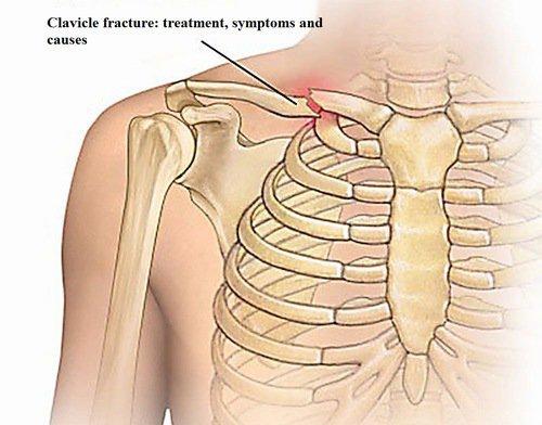 Đau khi cử động khớp vai phải sau 8 năm gãy xương quai xanh có nguy hiểm không?