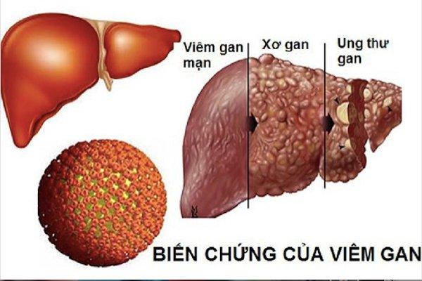 Bệnh xơ gan ở người viêm gan B mạn tính điều trị như thế nào?