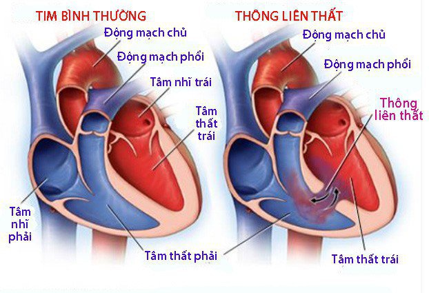 Thông liên nhĩ là bệnh gì? Khó thở kèm tim đập nhanh có phải mắc bệnh tim không?