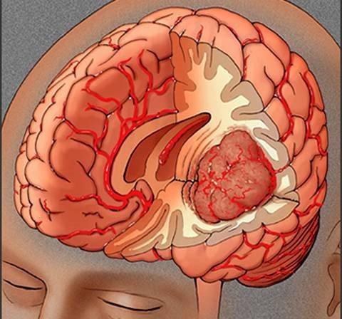 Đau đầu sau hơn 1 tháng bị ngã có nên chụp CT lại không?