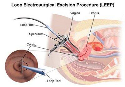 Sau thủ thuật LEEP và sử dụng thuốc bị đau đầu gối chân, cổ tay là bị làm sao?