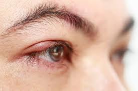 Sưng mặt kèm giật mí mắt trái có phải do nhân tuyến giáp?