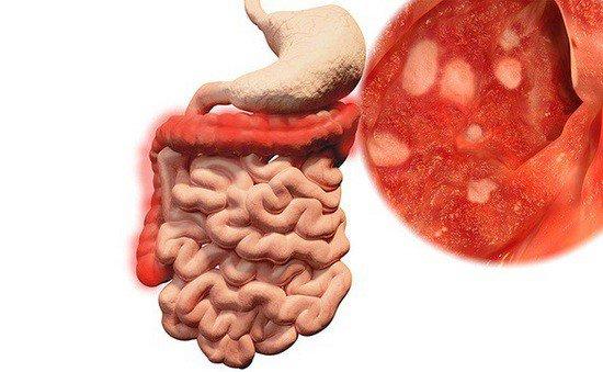 bệnh viêm ruột