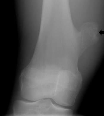 Xạ hình xương có phải phương pháp xác định u xương chày lành tính hay ác tính không?