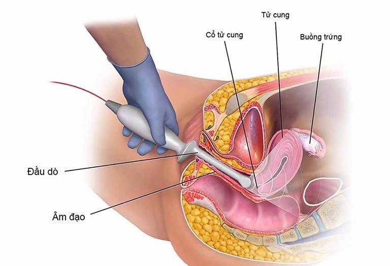 Siêu âm đầu dò khả năng thai lưu cao nhưng không ra máu phải làm thế nào?