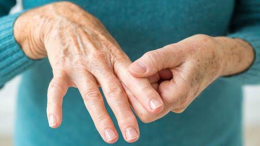 Viêm khớp dạng thấp có thể điều trị bằng vật lý trị liệu được không?