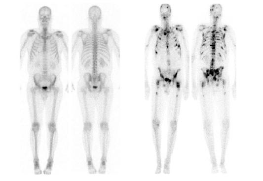 Chụp xạ hình xương