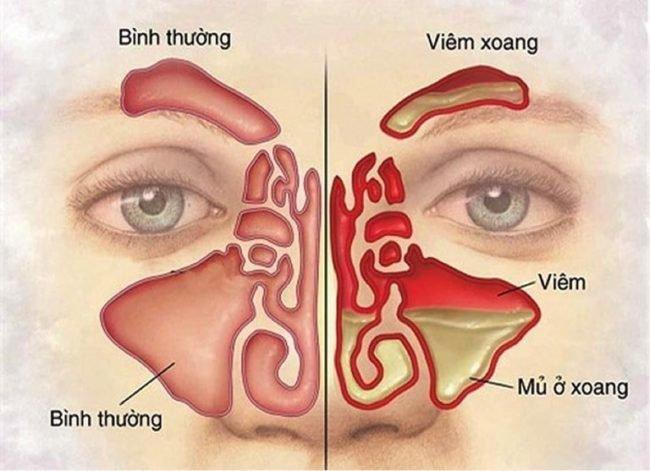 Mắc viêm phổi cấp và phải xịt 1 hơi bằng mũi để thêm oxy có phải viêm xoang không?