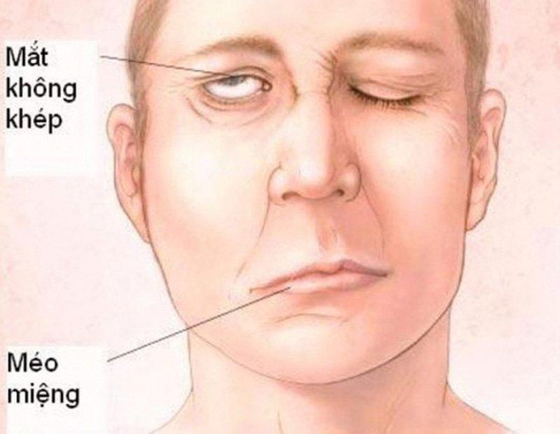 Mắt phải màn đen cụp xuống có phải dấu hiệu đột quỵ không?