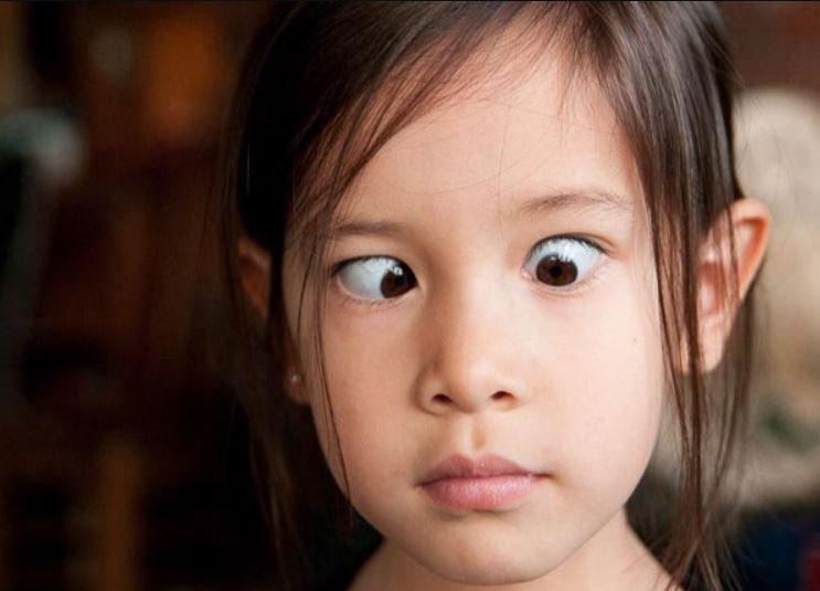 Trẻ 5 tuổi phẫu thuật kéo lác có bị lác lại ở tuổi dậy thì không?
