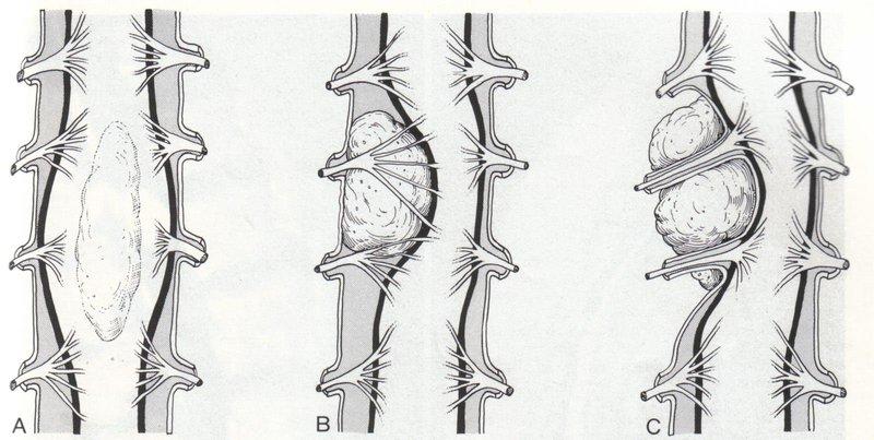 U tủy sống trong màng cứng đã phẫu thuật 2 lần có khỏi không?