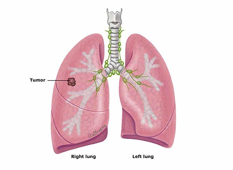 Ung thư phổi tế bào nhỏ đã điều trị có thể sử dụng phương pháp điều trị miễn dịch không?
