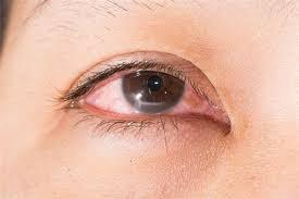 Nhỏ mắt có cảm giác hơi cay sau khi bị miệng chai chọc vào mắt có sao không?
