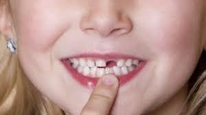 Bé 6 tuổi đã rụng răng vĩnh viễn có mọc lên lại được không?