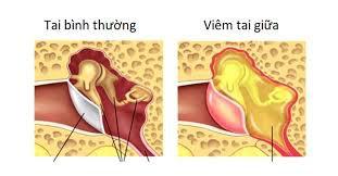 Cách điều trị hiệu quả viêm tai giữa thủng nhĩ và viêm tai xương chũm?