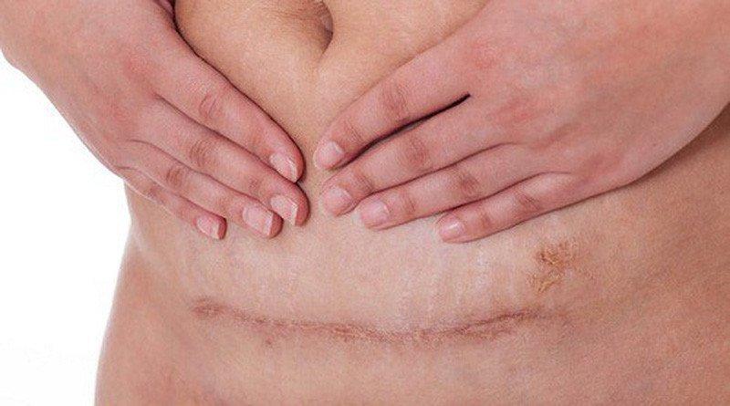 Đau vết mổ đẻ khi hành kinh có nên mổ lại không?