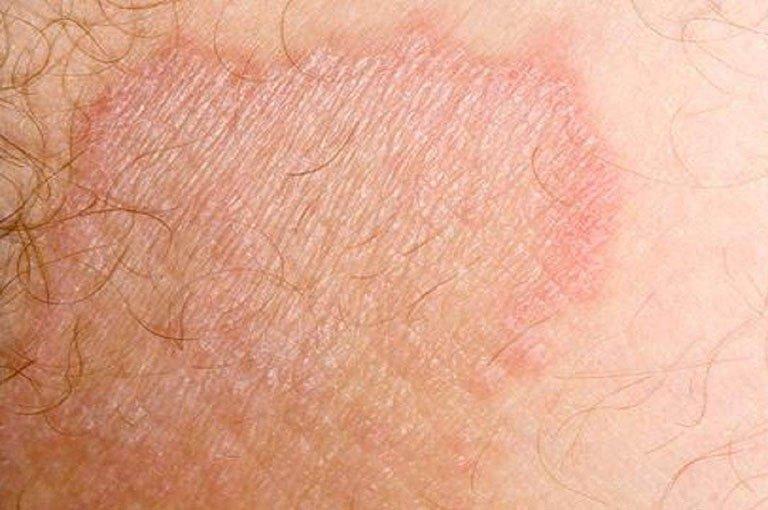 Viêm da ở bộ phận sinh dục là bệnh gì?