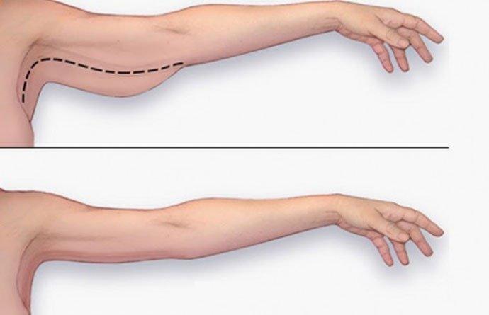 mỡ dưới cánh tay