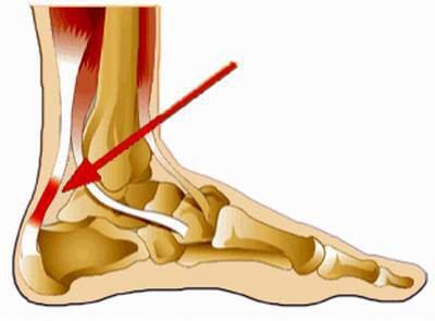 Điều trị đau gót Achille như thế nào để hồi phục nhanh nhất?