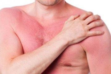 Bị nóng trong như kim châm vào mùa đông là triệu chứng của bệnh gì?