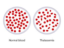 Bé 6 tuổi có thể ghép tế bào gốc điều trị Thalassemia được không?