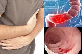 Bệnh viêm loét đại tràng chảy máu được tìm ra như thế nào?