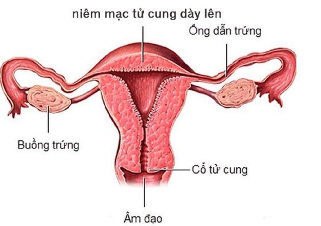Đẻ mổ lần 1, thành tử cung dày có thể mang thai tiếp được không?