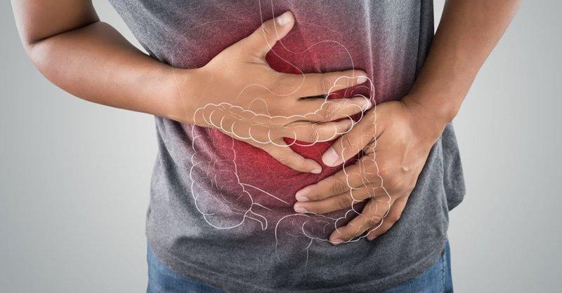 Chẩn đoán và điều trị bệnh viêm loét đại tràng chảy máu mức độ nặng