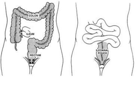 Biểu hiện ngoài đường tiêu hóa của bệnh viêm loét đại tràng chảy máu