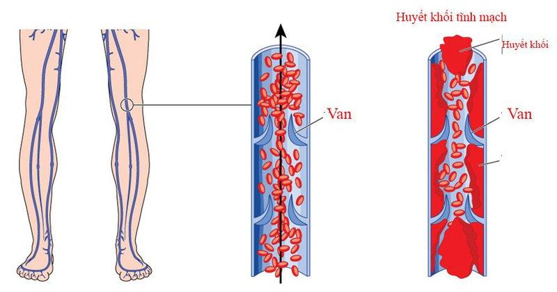 thuyên tắc huyết khối tĩnh mạch