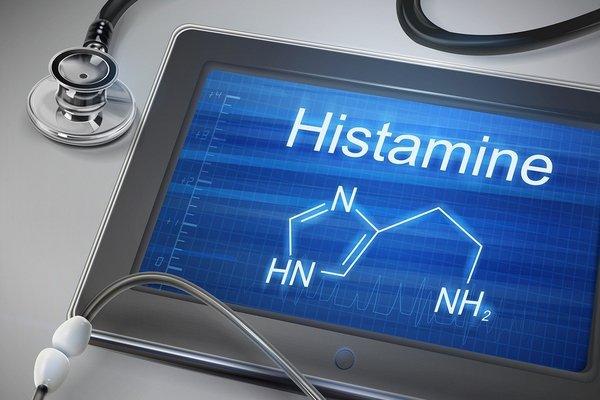 ngộ độc histamine