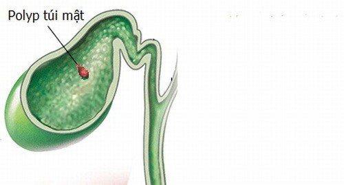 Polyp túi mật 4mm có ảnh hưởng đến tiêu hóa không?