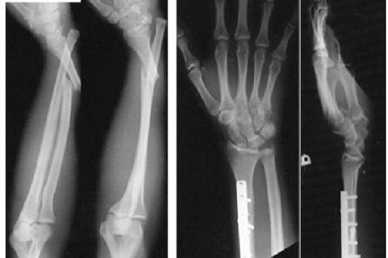 Bể nát xương quay tay, đã phẫu thuật gắn ốc thì có cần mổ lấy ra không?
