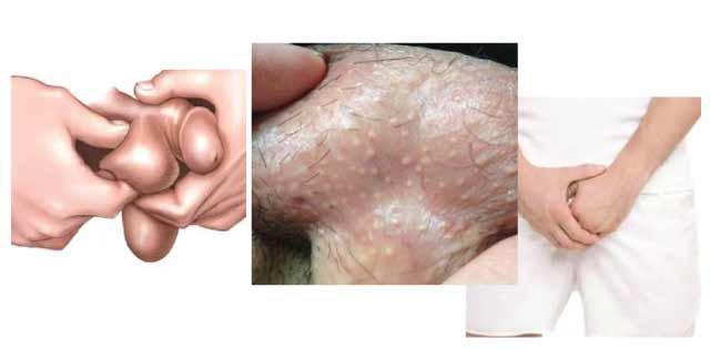 Xuất hiện hạt trắng trên dương vật và bìu tinh hoàn là dấu hiệu của bệnh gì?