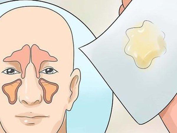 Thường xuyên thấy máu khô dính trên vảy mũi là dấu hiệu của bệnh gì?