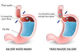 Phân như tiêu chảy khi điều trị trào ngược dạ dày kèm viêm dạ dày thực quản phải làm gì?