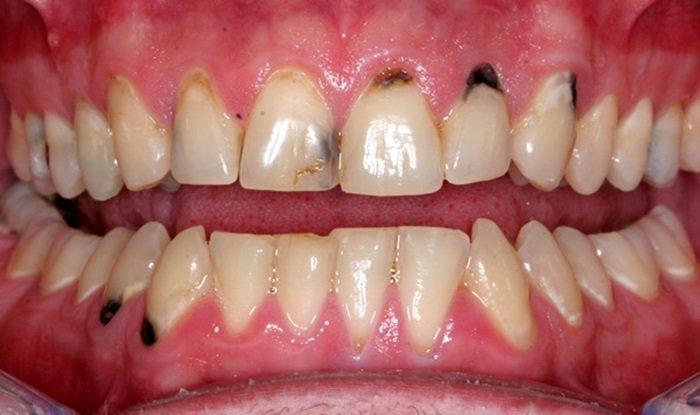 Tại sao bị sâu răng không được tẩy trắng răng?