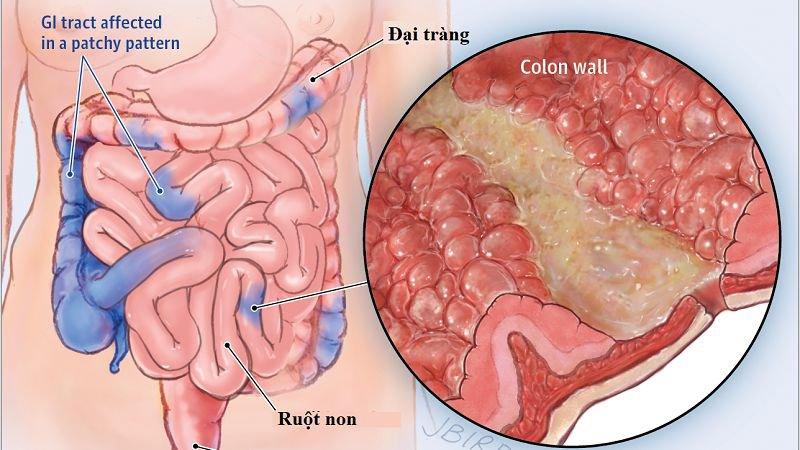 Bệnh Crohn và bệnh túi mật